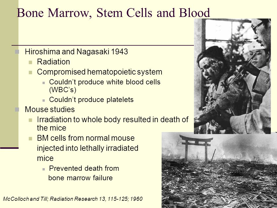 Bone Marrow, Stem Cells and Blood Hiroshima and Nagasaki 1943 Radiation Compromised hematopoietic system Couldn't produce white blood cells (WBC's) Co