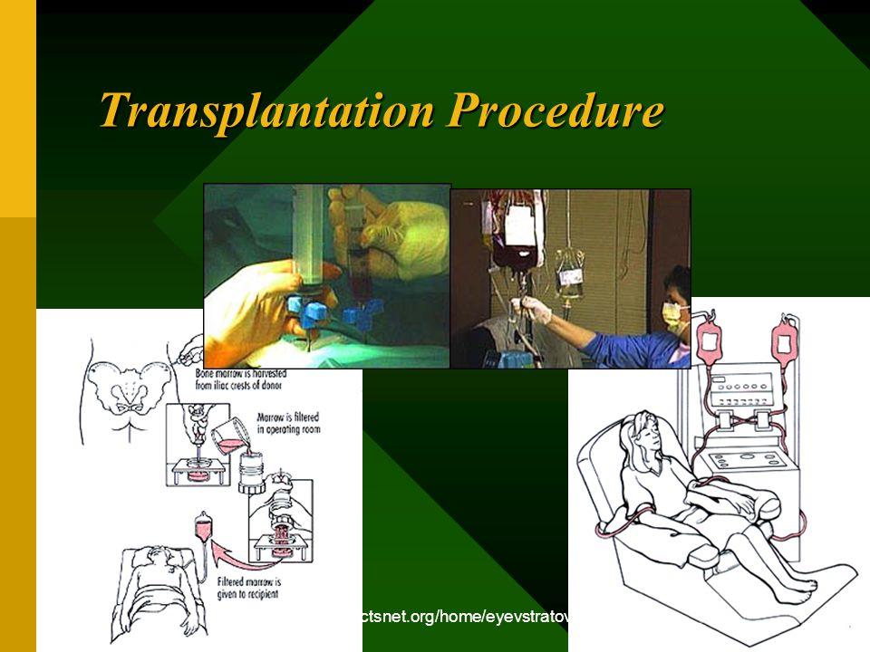 http://www.ctsnet.org/home/eyevstratov Transplantation Procedure