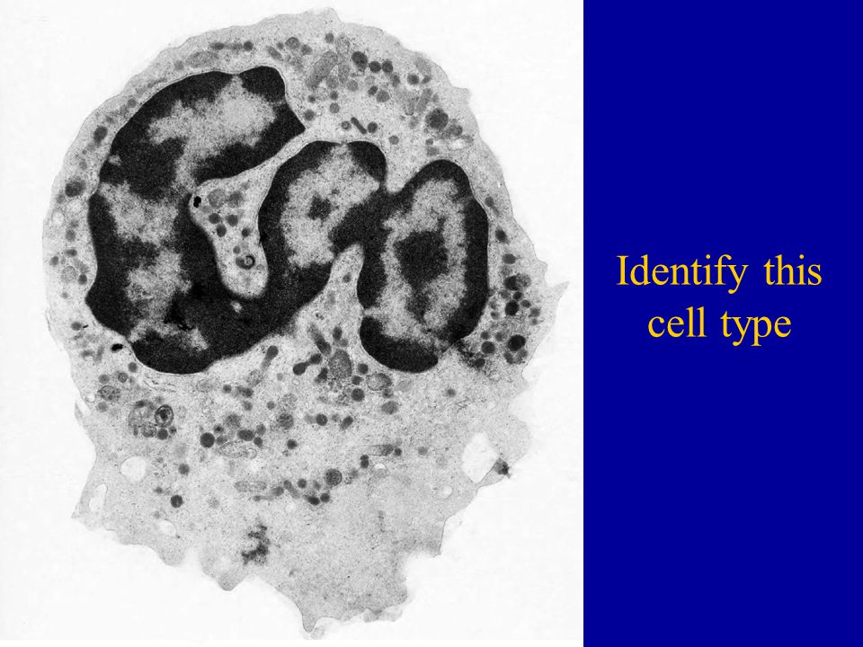 Identify this cell type