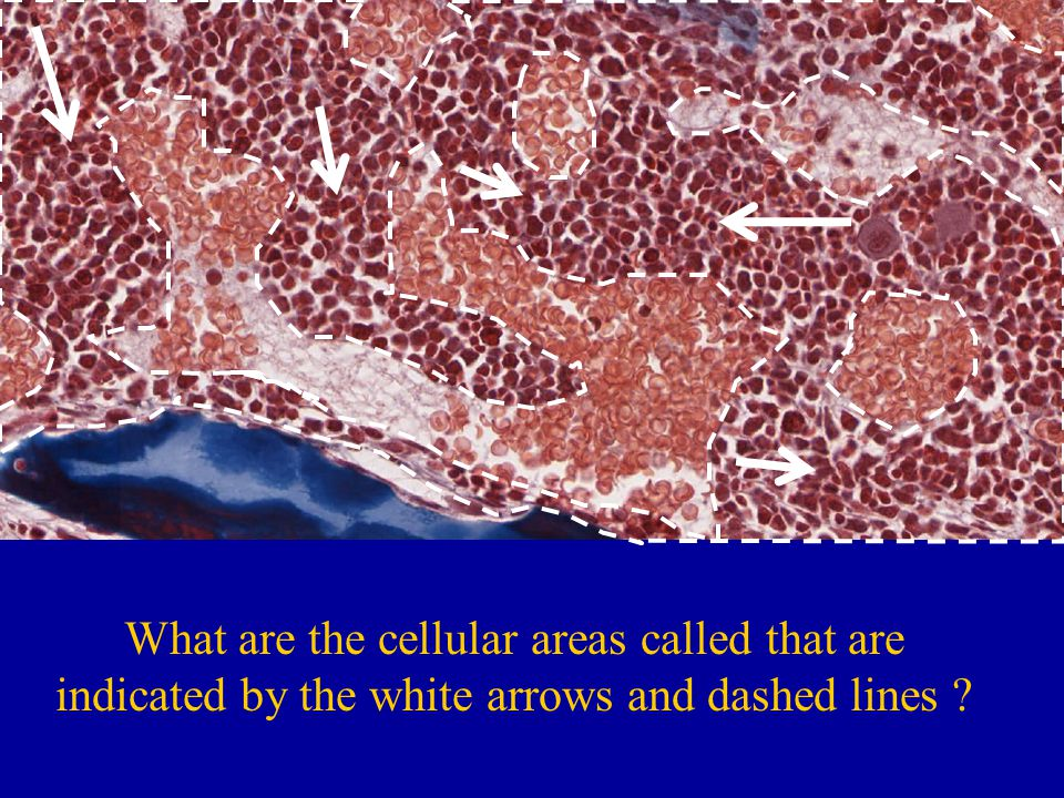 What are the cellular areas called that are indicated by the white arrows and dashed lines ?