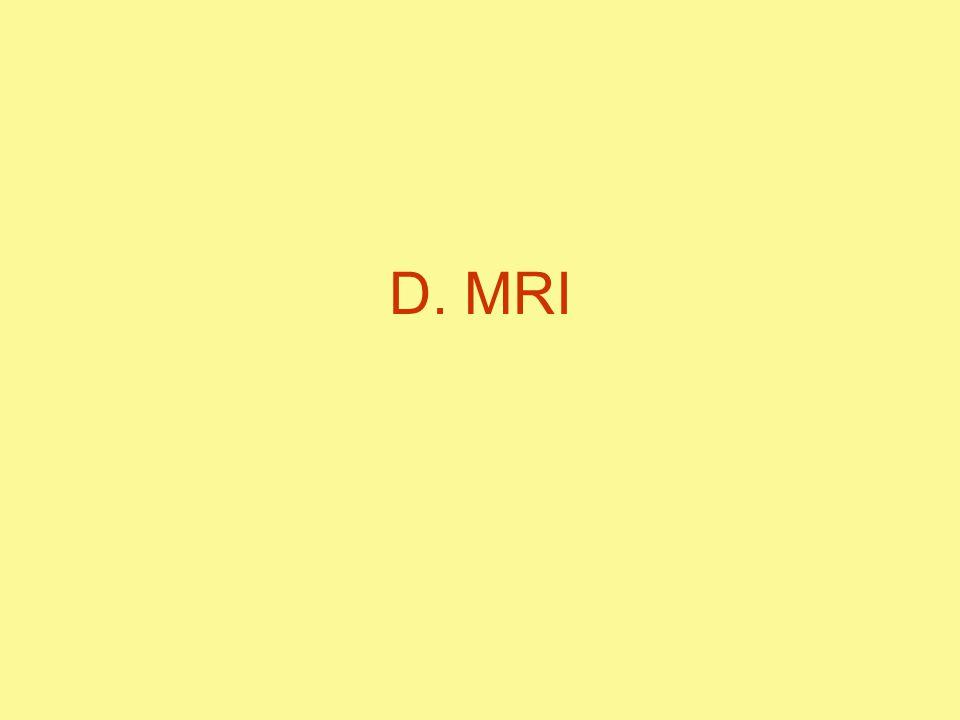 D. MRI