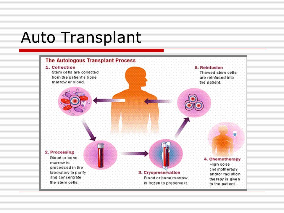 Auto Transplant