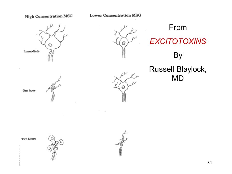 Nerve Cells From EXCITOTOXINS By Russell Blaylock, MD 31