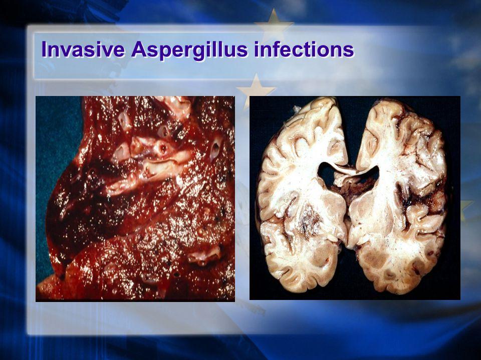 Invasive Aspergillus infections