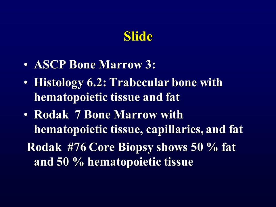 Slide ASCP Bone Marrow 3:ASCP Bone Marrow 3: Histology 6.2: Trabecular bone with hematopoietic tissue and fatHistology 6.2: Trabecular bone with hemat