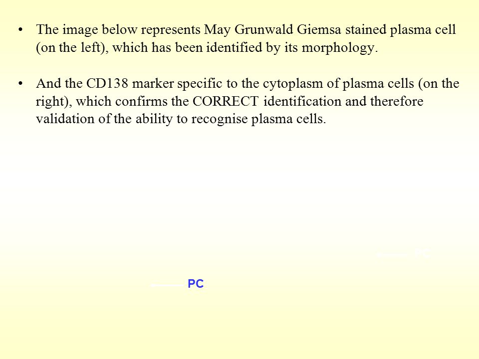 The image below represents May Grunwald Giemsa stained plasma cell (on the left), which has been identified by its morphology. And the CD138 marker sp