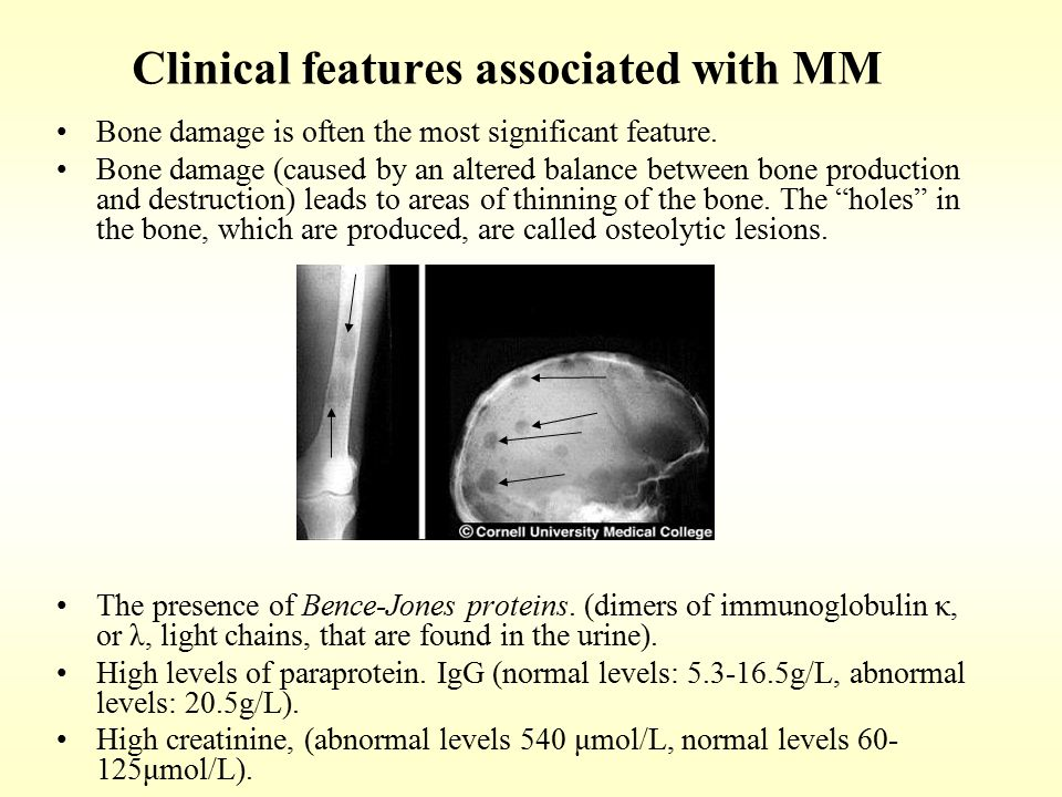 Clinical features associated with MM Bone damage is often the most significant feature. Bone damage (caused by an altered balance between bone product
