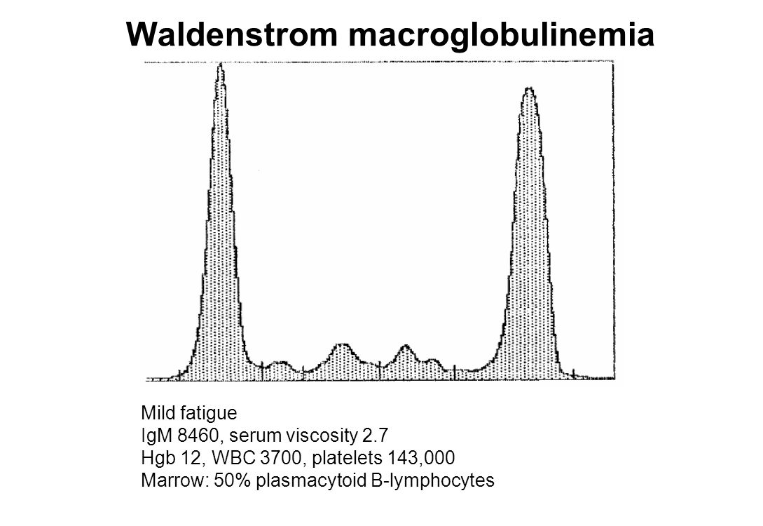 Waldenstrom macroglobulinemia Mild fatigue IgM 8460, serum viscosity 2.7 Hgb 12, WBC 3700, platelets 143,000 Marrow: 50% plasmacytoid B-lymphocytes
