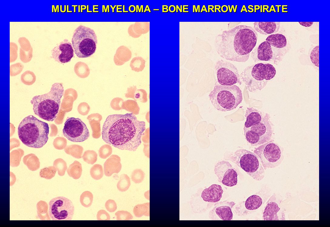 MULTIPLE MYELOMA – BONE MARROW ASPIRATE