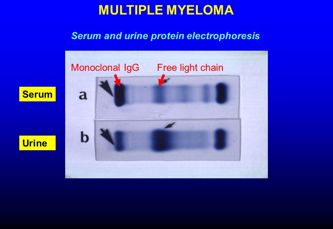 Multiple myeloma (IgG kappa) IgG 2080 Anemia, leukopenia Lytic bone lesions 10% marrow plasma cells