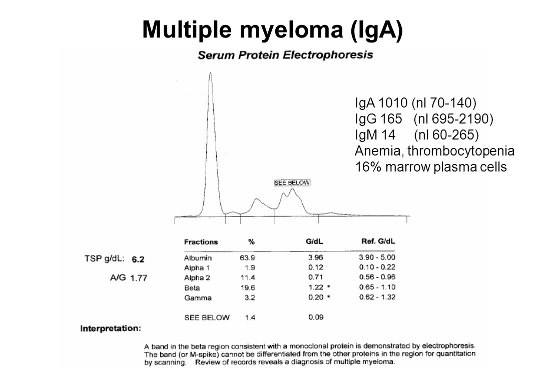 MGUS Ifix: monoclonal IgG kappa No proteinuria IgA 234 (50-540) IgG 1840 (600-1600) IgM 85 (40-250) Normal CBC