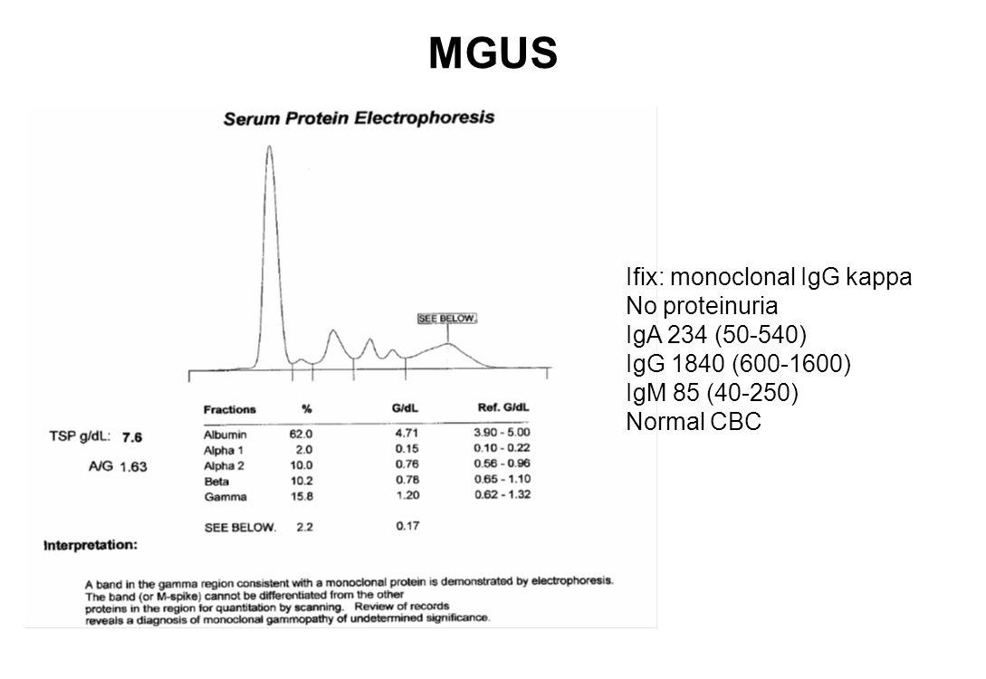 Waldenstrom macroglobulinemia with hyperviscosity syndrome Anemia, fatigue, retinopathy, bleeding disorder IgA 125 (70-440) IgG 724 (695-2190) IgM 5130 (60-265) Serum viscosity 3.6 Marrow: <5% plasmacytoid B-lymphocytes