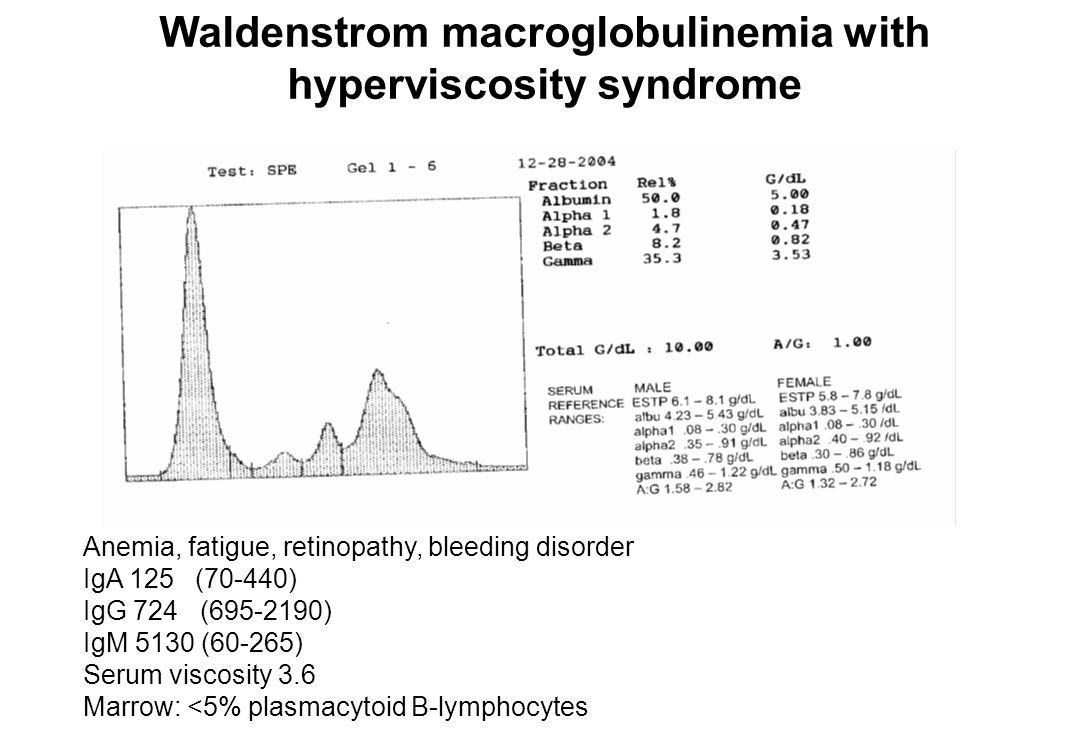 Waldenstrom macroglobulinemia Mild fatigue IgM 8460, serum viscosity 2.7 Hgb 12, WBC 3700, platelets 143,000 Marrow: 50% plasmacytoid B-lymphocytes