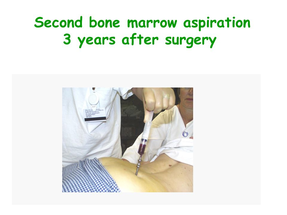 Second bone marrow aspiration 3 years after surgery