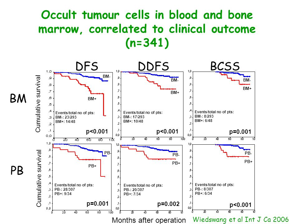 Occult tumour cells in blood and bone marrow, correlated to clinical outcome (n=341) BM PB Months after operation Cumulative survival p<0.001 p=0.001 BM+ BM- BM+ BM- PB+ PB- PB+ PB- p=0.002 Events/total no of pts: BM-: 17/293 BM+: 10/48 Events/total no of pts: PB-: 20/307 PB+: 7/34 Events/total no of pts: PB-: 8/307 PB+: 6/34 Events/total no of pts: BM-: 8/293 BM+: 6/48 p<0.001 BM+ BM- PB+ PB- p<0.001 p=0.001 Events/total no of pts: PB-: 28/307 PB+: 9/34 Events/total no of pts: BM-: 23/293 BM+: 14/48 DDFSBCSSDFS Wiedswang et al Int J Ca 2006