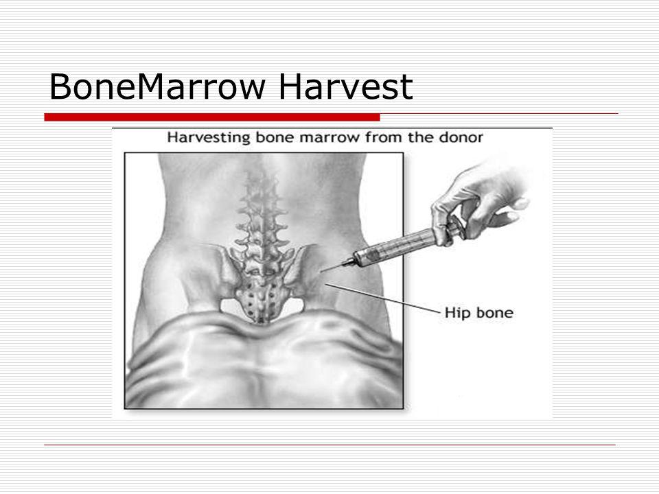 BoneMarrow Harvest