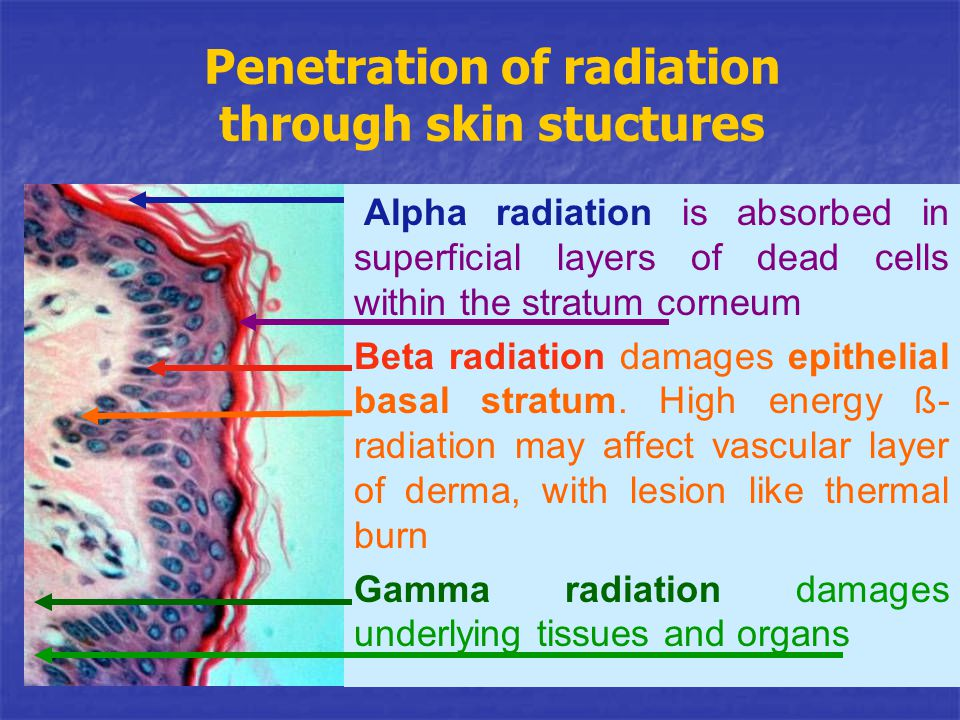 Penetration of radiation through skin stuctures Alpha radiation is absorbed in superficial layers of dead cells within the stratum corneum Beta radiat