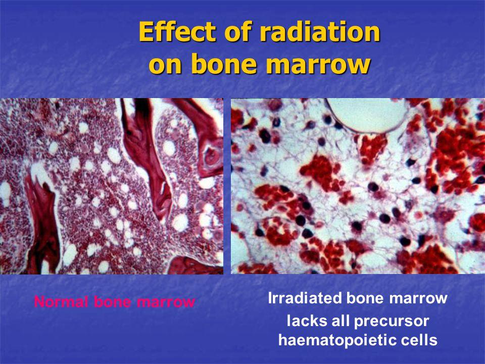 Irradiated bone marrow lacks all precursor haematopoietic cells Normal bone marrow Effect of radiation on bone marrow