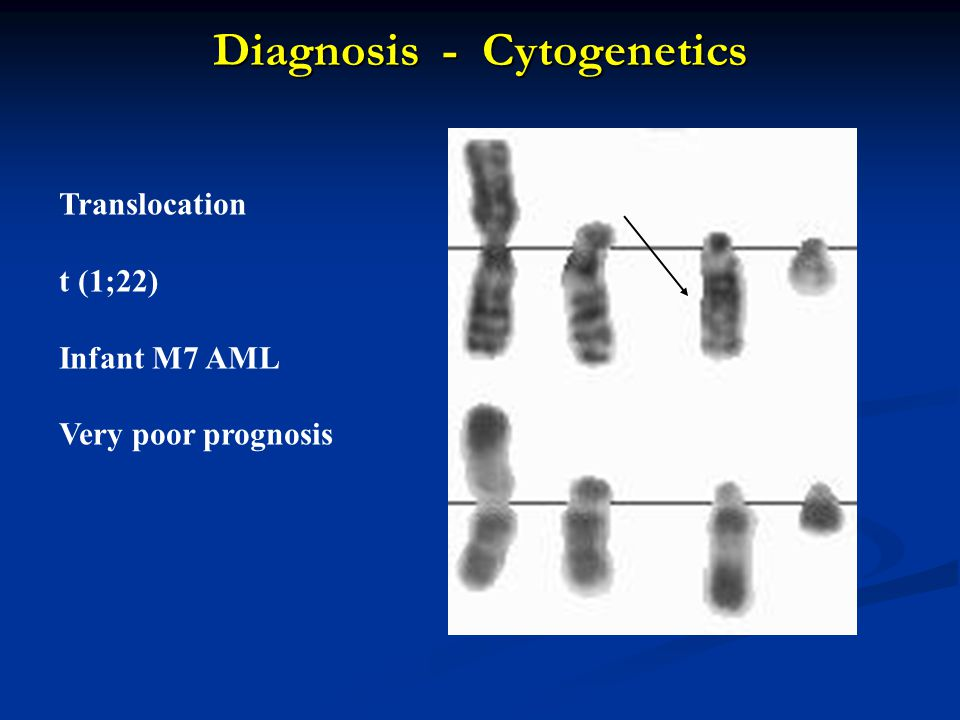 Diagnosis - Cytogenetics Translocation t (1;22) Infant M7 AML Very poor prognosis