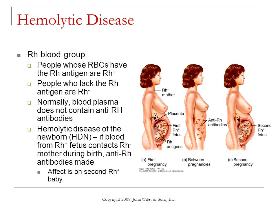 Copyright 2009, John Wiley & Sons, Inc. Hemolytic Disease Rh blood group  People whose RBCs have the Rh antigen are Rh +  People who lack the Rh ant