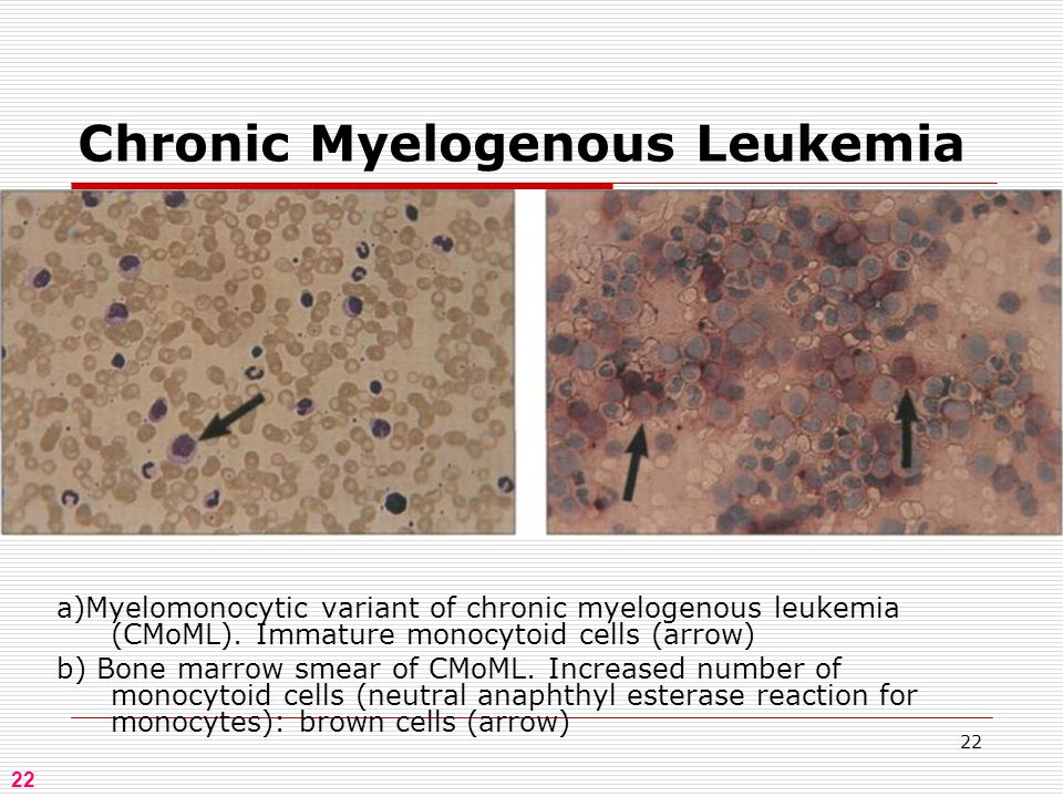 22 Chronic Myelogenous Leukemia 22 a)Myelomonocytic variant of chronic myelogenous leukemia (CMoML).