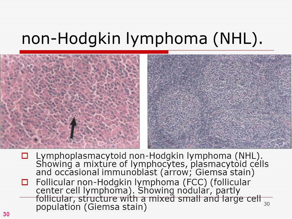 30 non-Hodgkin lymphoma (NHL).  Lymphoplasmacytoid non-Hodgkin lymphoma (NHL).
