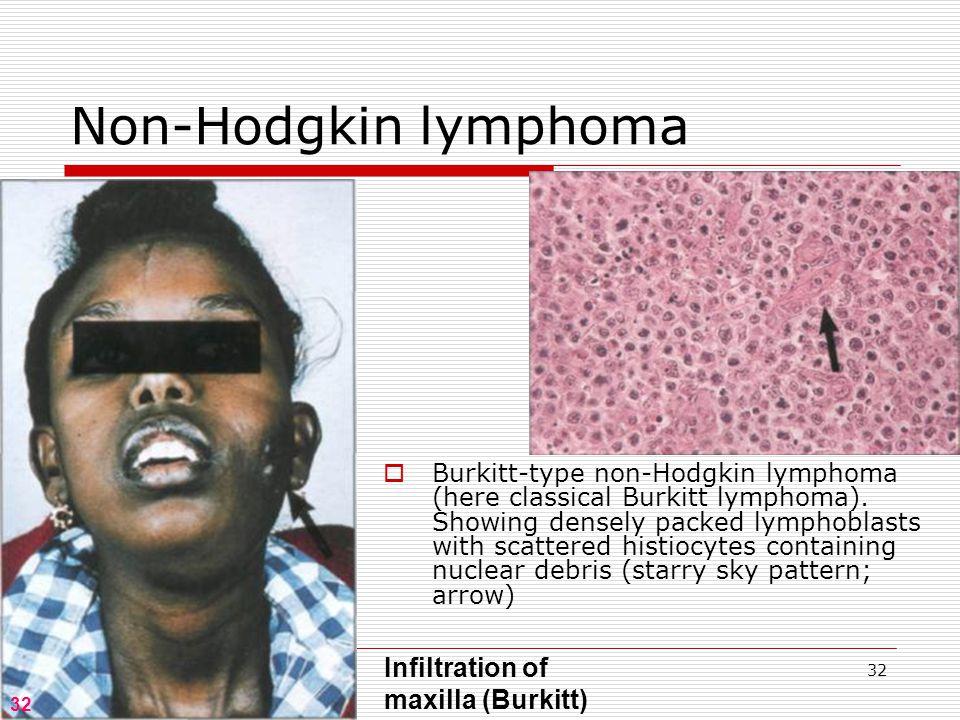 32 Non-Hodgkin lymphoma 32 Infiltration of maxilla (Burkitt)  Burkitt-type non-Hodgkin lymphoma (here classical Burkitt lymphoma).
