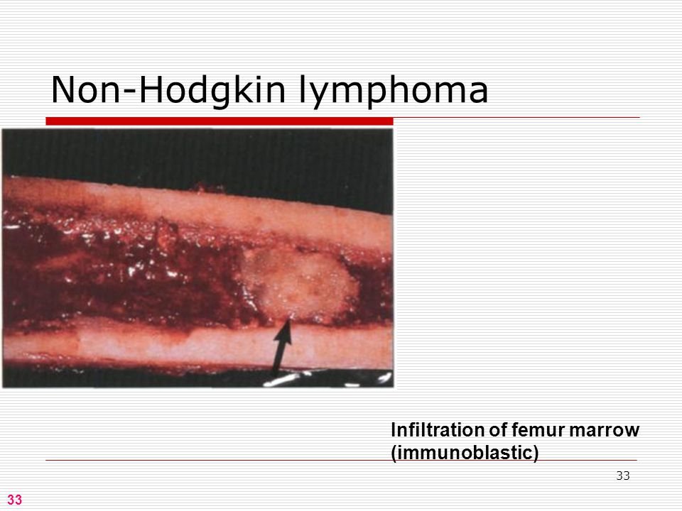 33 Infiltration of femur marrow (immunoblastic) Non-Hodgkin lymphoma 33
