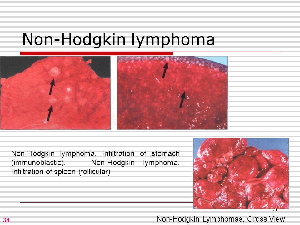 34 Non-Hodgkin lymphoma 34 Non-Hodgkin Lymphomas, Gross View Non-Hodgkin lymphoma.