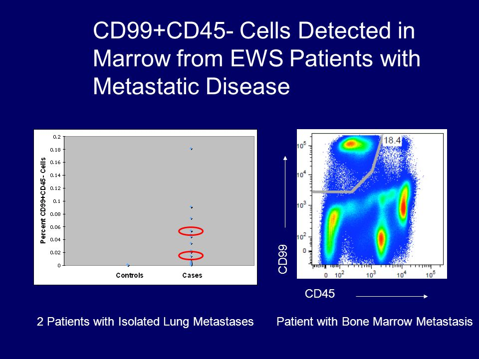 CD99+CD45- Cells Detected in Marrow from EWS Patients with Metastatic Disease 2 Patients with Isolated Lung MetastasesPatient with Bone Marrow Metastasis CD45 CD99