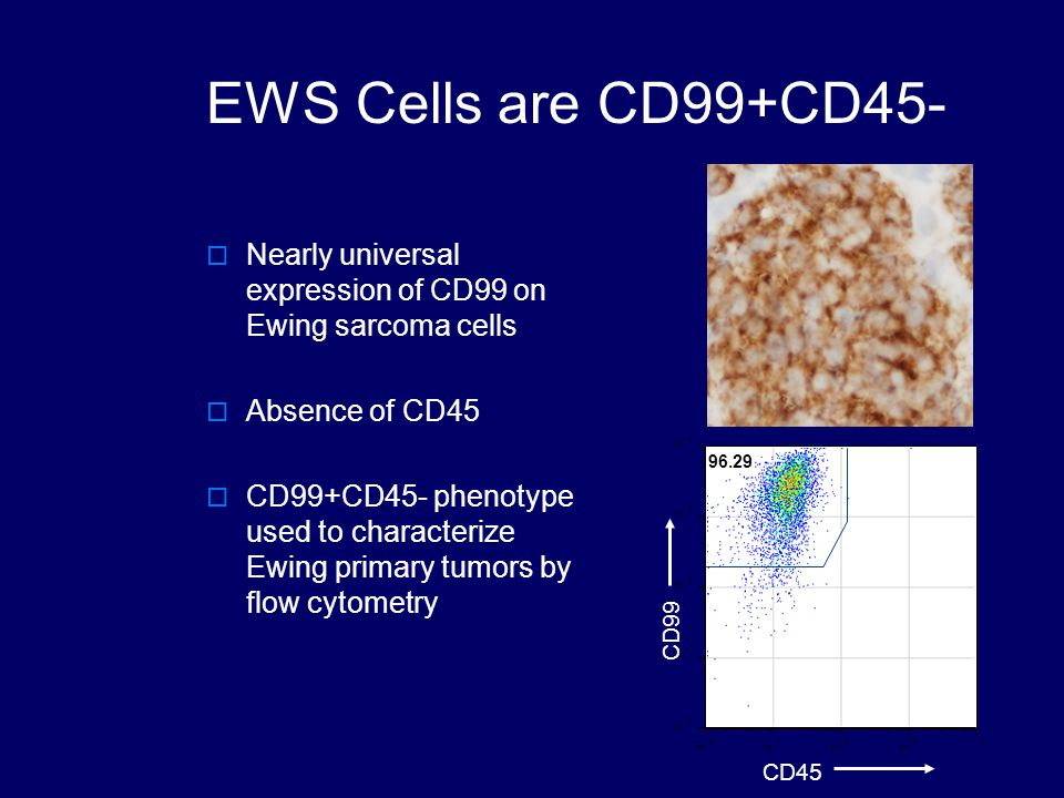 EWS Cells are CD99+CD45-  Nearly universal expression of CD99 on Ewing sarcoma cells  Absence of CD45  CD99+CD45- phenotype used to characterize Ewing primary tumors by flow cytometry 10 0 1 2 34 CD45 10 0 1 2 3 4 CD99 96.29
