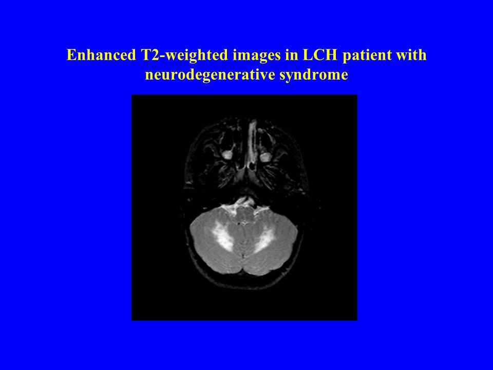 Enhanced T2-weighted images in LCH patient with neurodegenerative syndrome