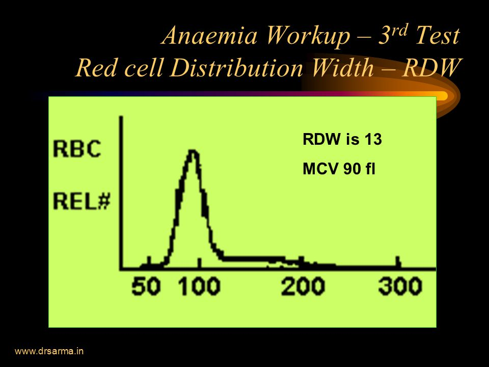 www.drsarma.in Anaemia Workup – 3 rd Test Red cell Distribution Width – RDW RDW < 13 Mean 90 fl RDW is 13 MCV 90 fl