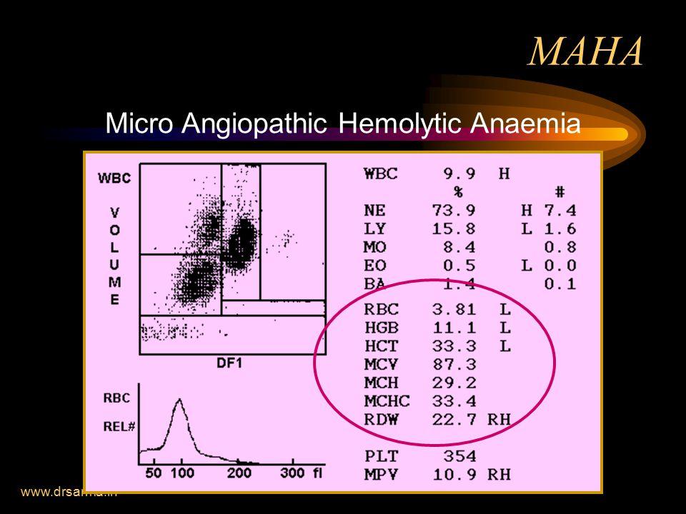 www.drsarma.in MAHA Micro Angiopathic Hemolytic Anaemia
