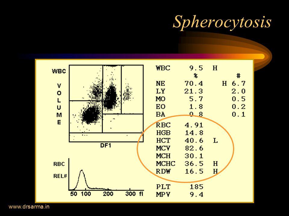 www.drsarma.in Spherocytosis