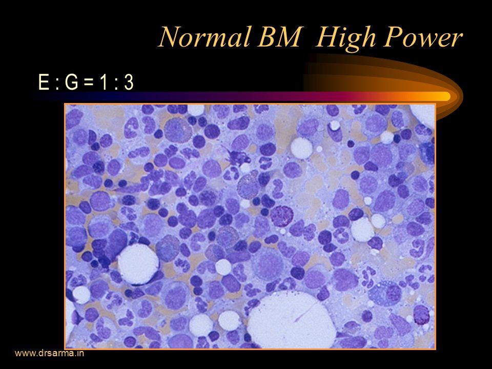 www.drsarma.in Normal BM High Power E : G = 1 : 3