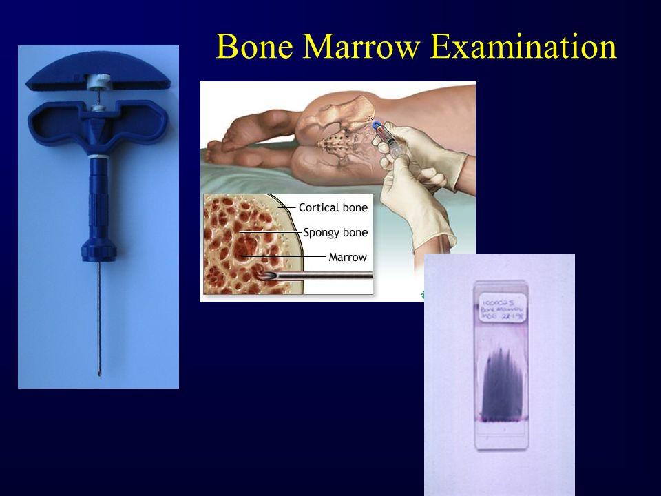 Normal Bone Marrow Aspirate