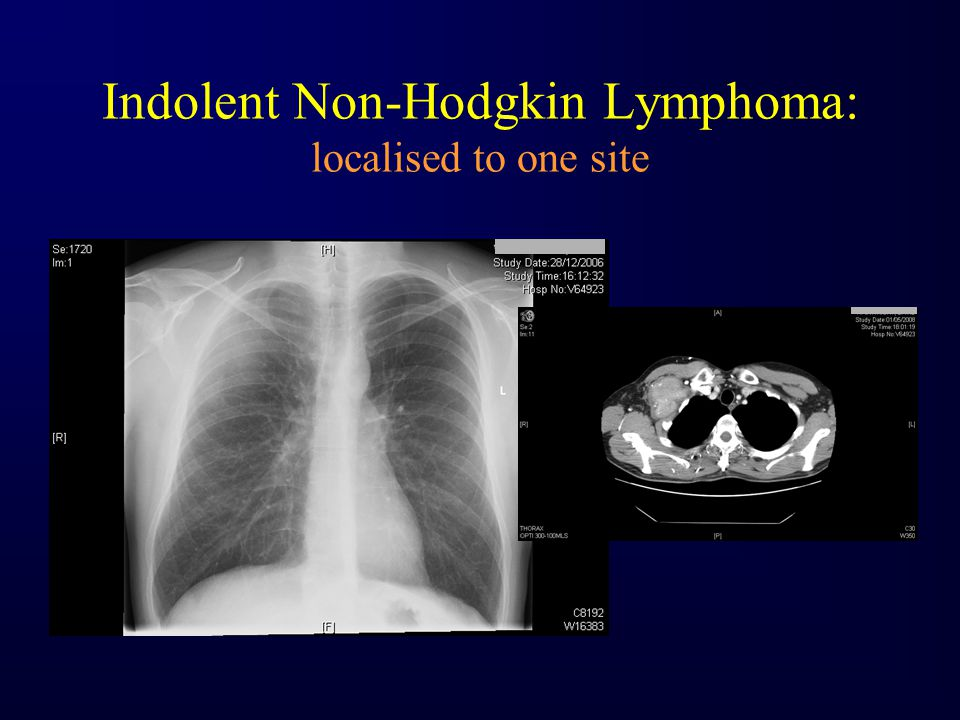 Indolent Non-Hodgkin Lymphoma: localised to one site