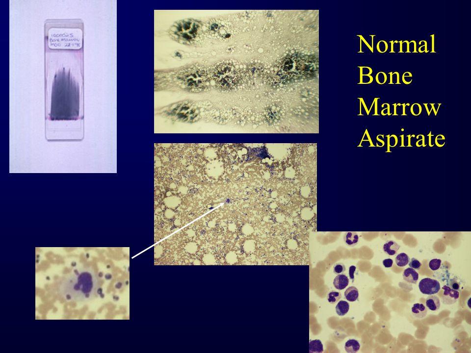Intraabdominal lymphoma