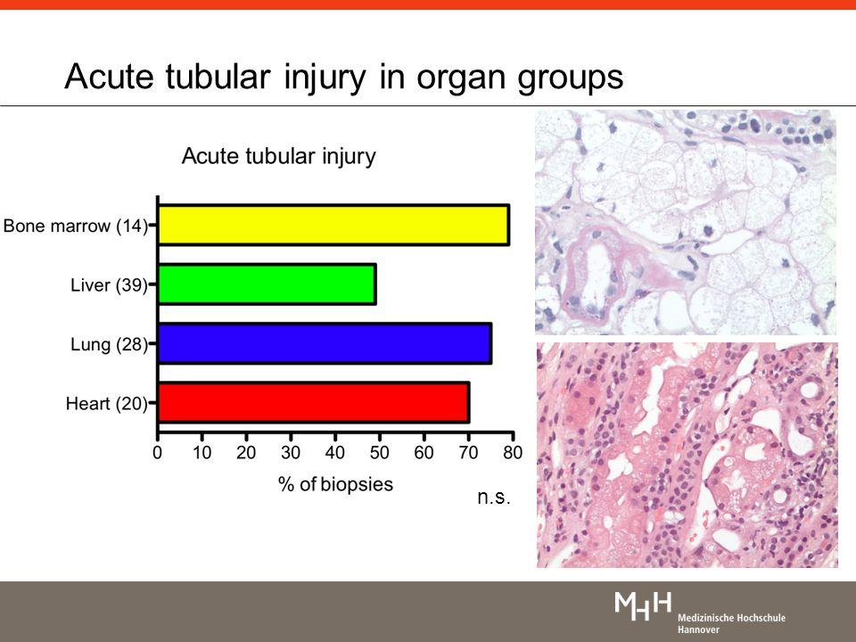 Acute tubular injury in organ groups n.s.
