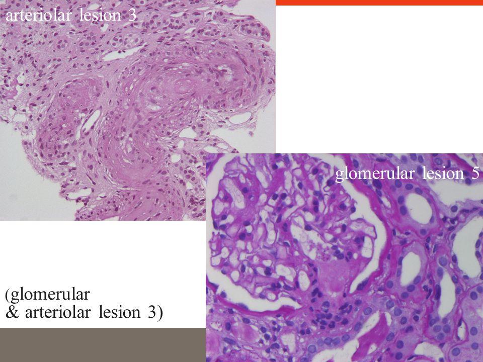 glomerular lesion 5 arteriolar lesion 3 ( glomerular & arteriolar lesion 3)