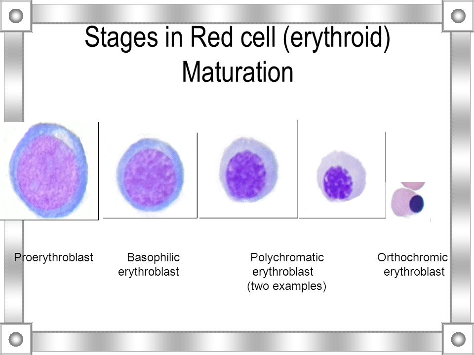 Stages in Red cell (erythroid) Maturation Proerythroblast Basophilic Polychromatic Orthochromic erythroblast erythroblast erythroblast (two examples)