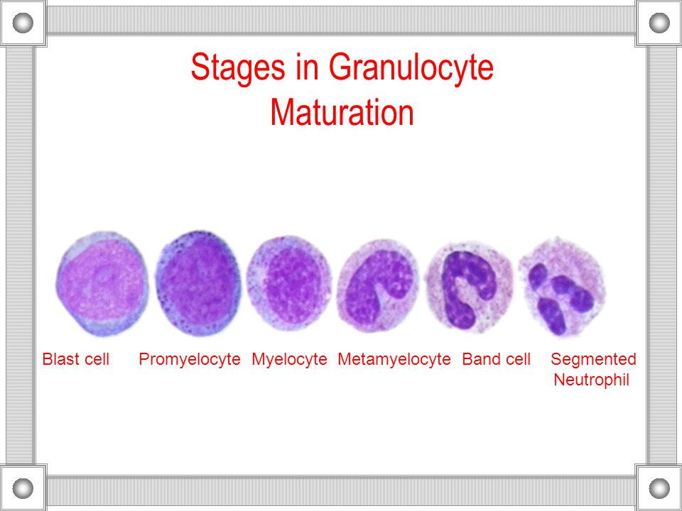 Stages in Granulocyte Maturation Blast cell Promyelocyte Myelocyte Metamyelocyte Band cell Segmented Neutrophil