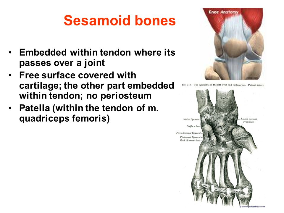 Sesamoid bones Embedded within tendon where its passes over a joint Free surface covered with cartilage; the other part embedded within tendon; no per