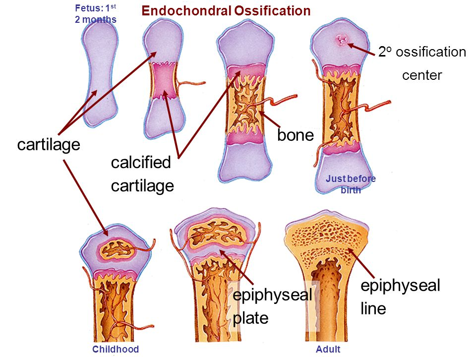 cartilage calcified cartilage bone epiphyseal plate epiphyseal line Endochondral Ossification 2 o ossification center Fetus: 1 st 2 months AdultChildh