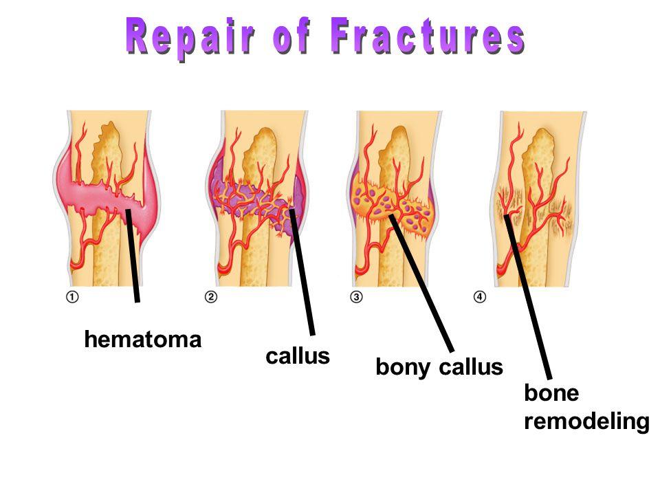 hematoma callus bony callus bone remodeling