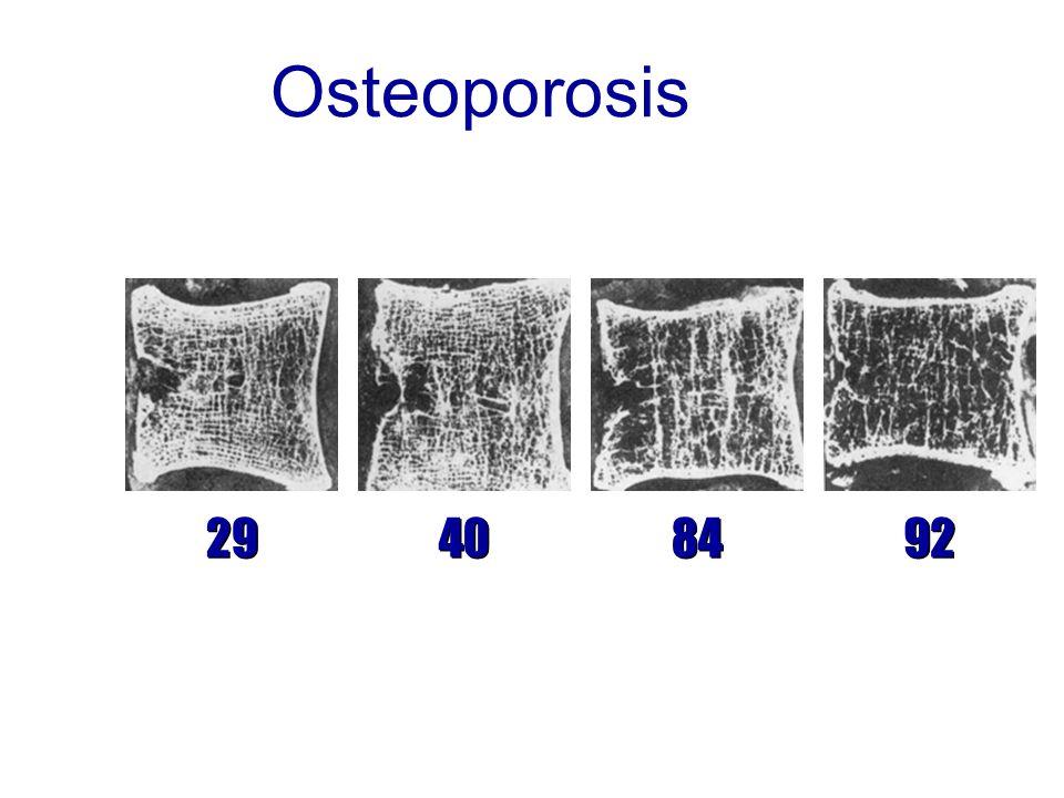 Osteoporosis 29 40 84 92
