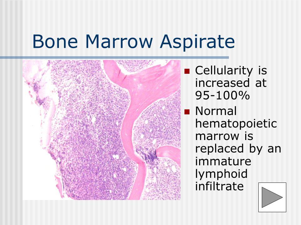 Normal Bone Marrow
