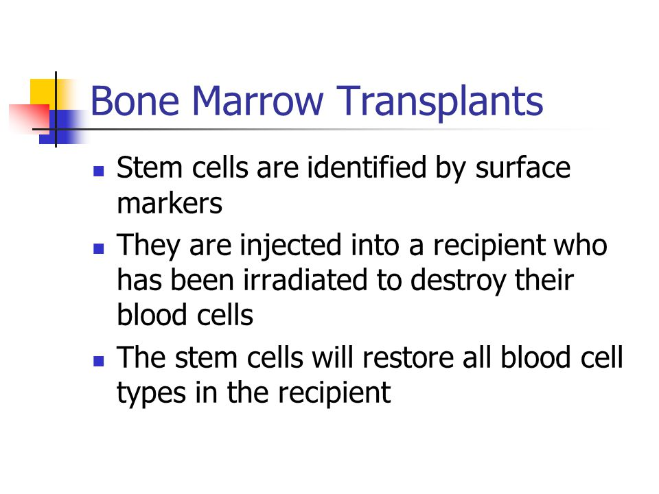 Bone Marrow Transplants Stem cells are identified by surface markers They are injected into a recipient who has been irradiated to destroy their blood cells The stem cells will restore all blood cell types in the recipient