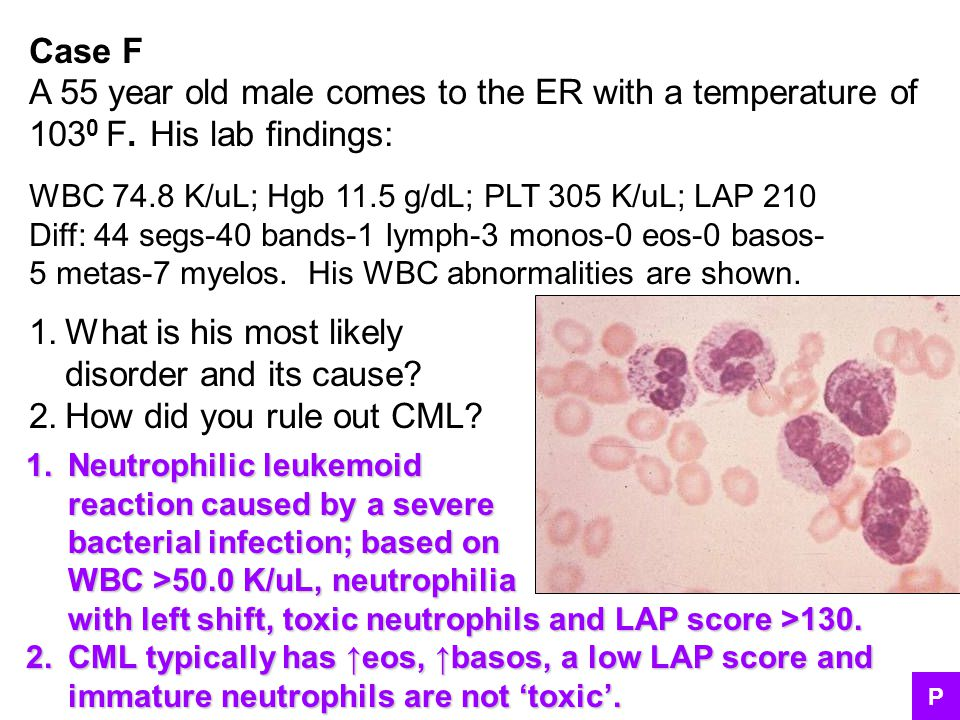 Case F A 55 year old male comes to the ER with a temperature of 103 0 F. His lab findings: WBC 74.8 K/uL; Hgb 11.5 g/dL; PLT 305 K/uL; LAP 210 Diff: 4